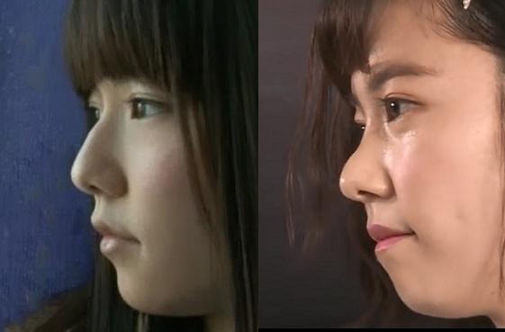 島崎遥香が鼻を整形!しかし鼻筋がえぐれており前の方がきれいという悲劇