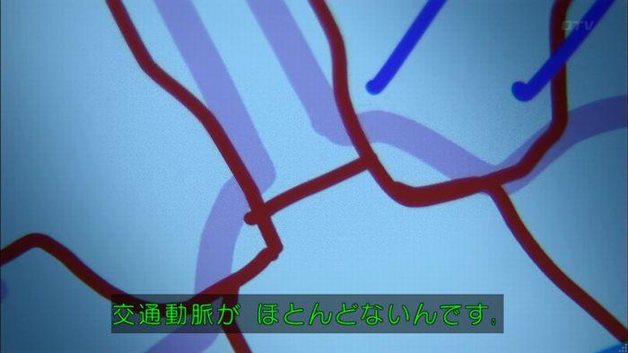 コード・ブルー4話のキャプ213