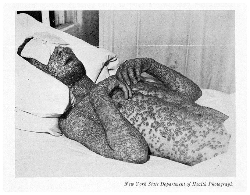 天然痘(痘そう) : 【閲覧注意】...